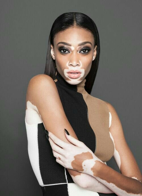 Самая необычная модель в мире или девушка, изменившая понятие о красоте.
